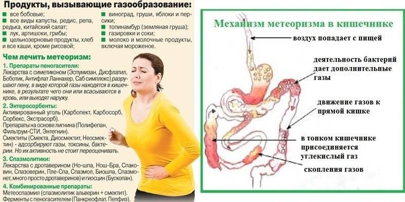Диета при метеоризме кишечника и запоре